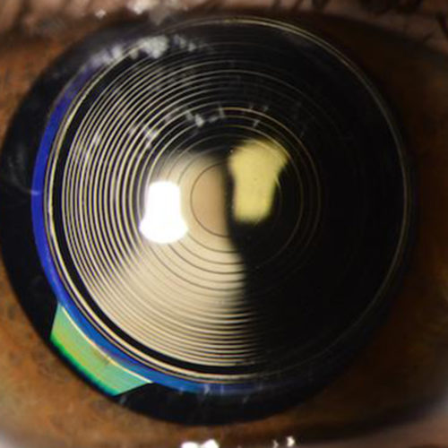 Refractive Lens Extraction